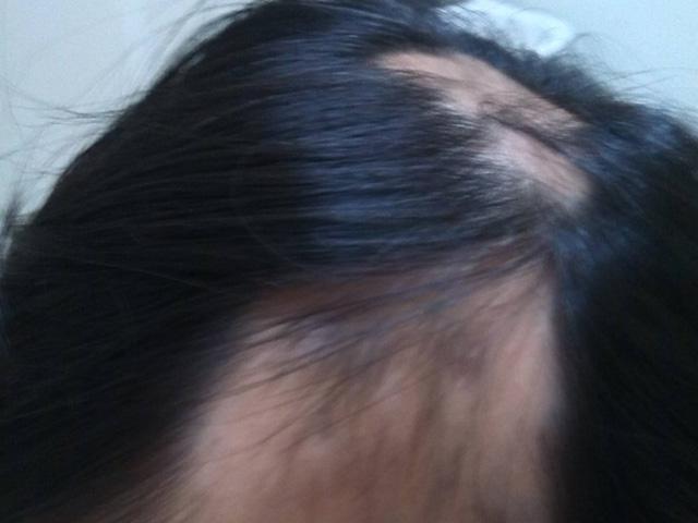 常见的儿童脱发原因分析