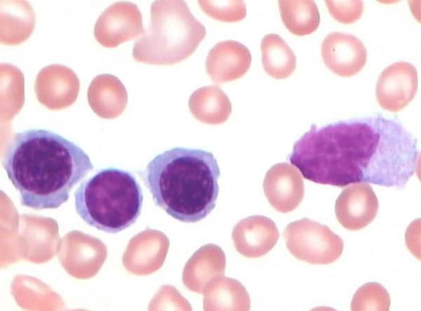 单核细胞百分比高是什么原因