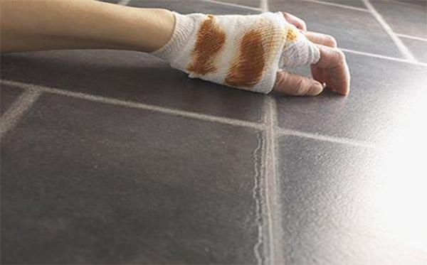 跌打损伤、扭伤、摔伤时应注意的事项
