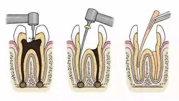 牙龈肿痛怎么办?